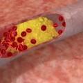 Снижение холестерина